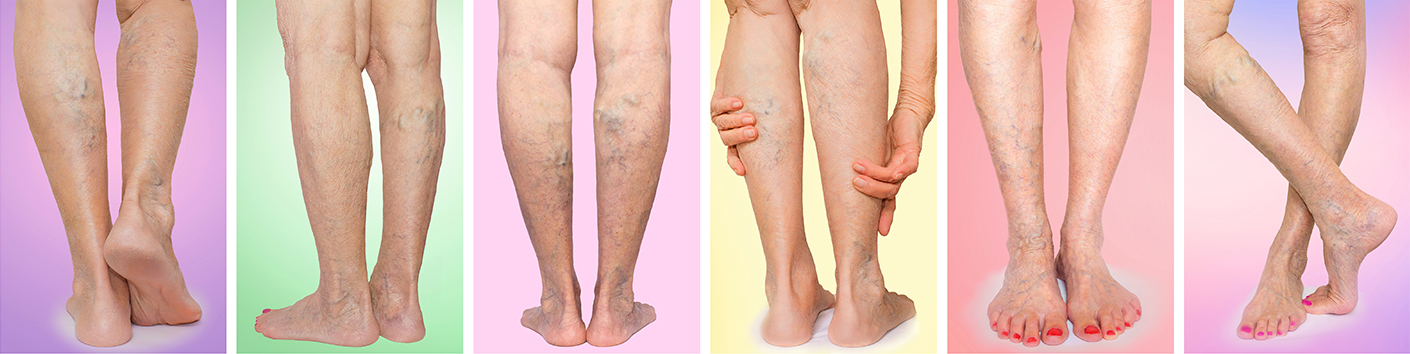Examples of Varicose Veins in legs